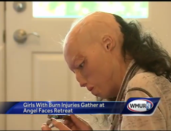 "Girls with Burn Injuries Find Healing at ""Angel Faces"" Retreat"